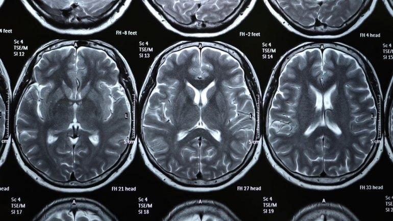 X-rays of the human brain